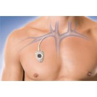 Установка порт-системы: показания использования венозного порта при химеотерапии. имплантация и уход